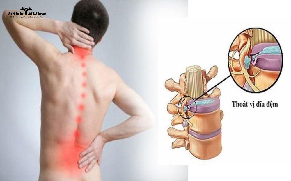 ghế massage trị thoát vị đĩa đệm