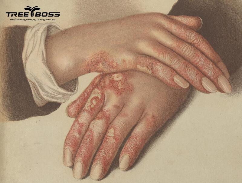 cách trị nhức mỏi tay chân tại nhà
