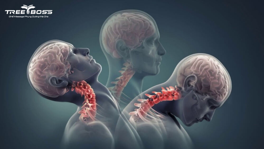 cách chữa đau cổ khi ngủ dậy