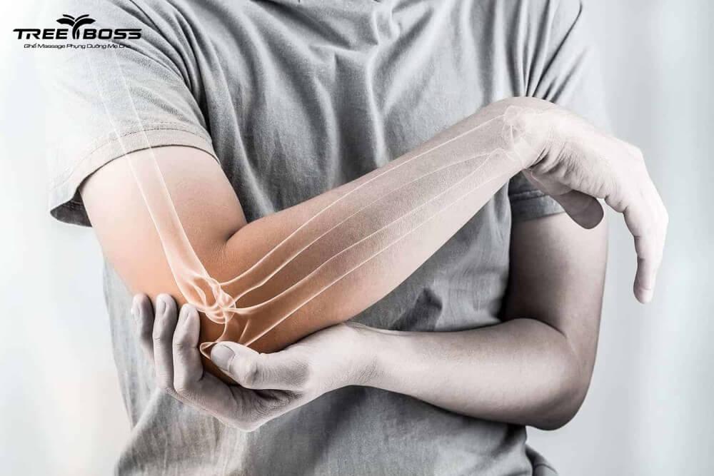 chữa đau dây chằng khuỷu tay