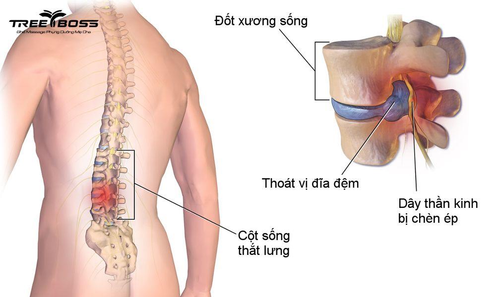 tự nhiên đau lưng không cúi được