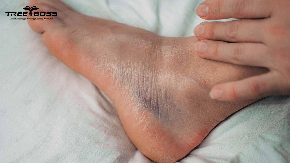 đau nhức 2 bắp chân