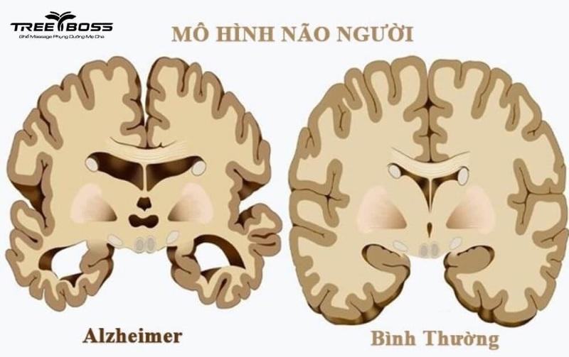 Bệnh mất trí nhớ do đâu? Dấu hiệu và cách trị thế nào?