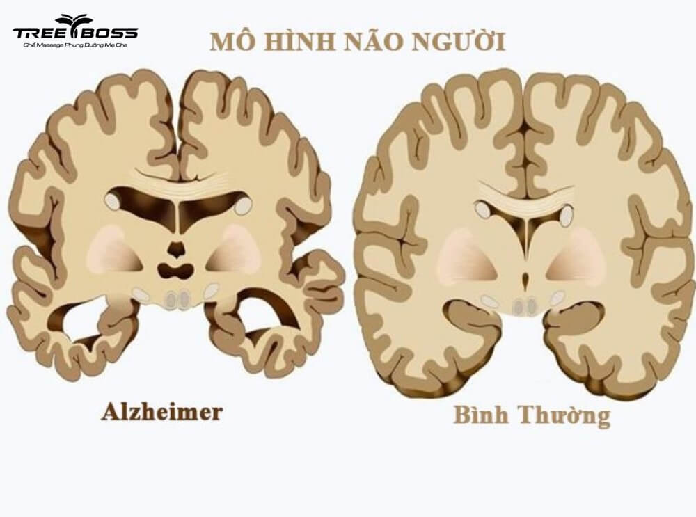 bệnh mất trí nhớ là bệnh gì
