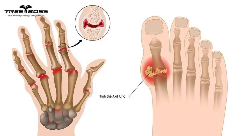 Đau nhức khớp ngón tay là bệnh gì? Nguyên nhân & cách chữa