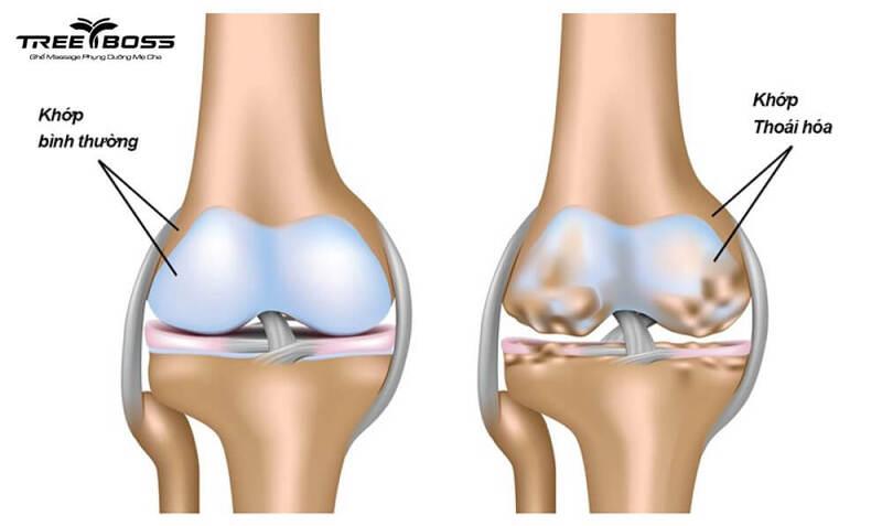 Đau nhức xương khớp ở người già do đâu? Điều trị cách nào?