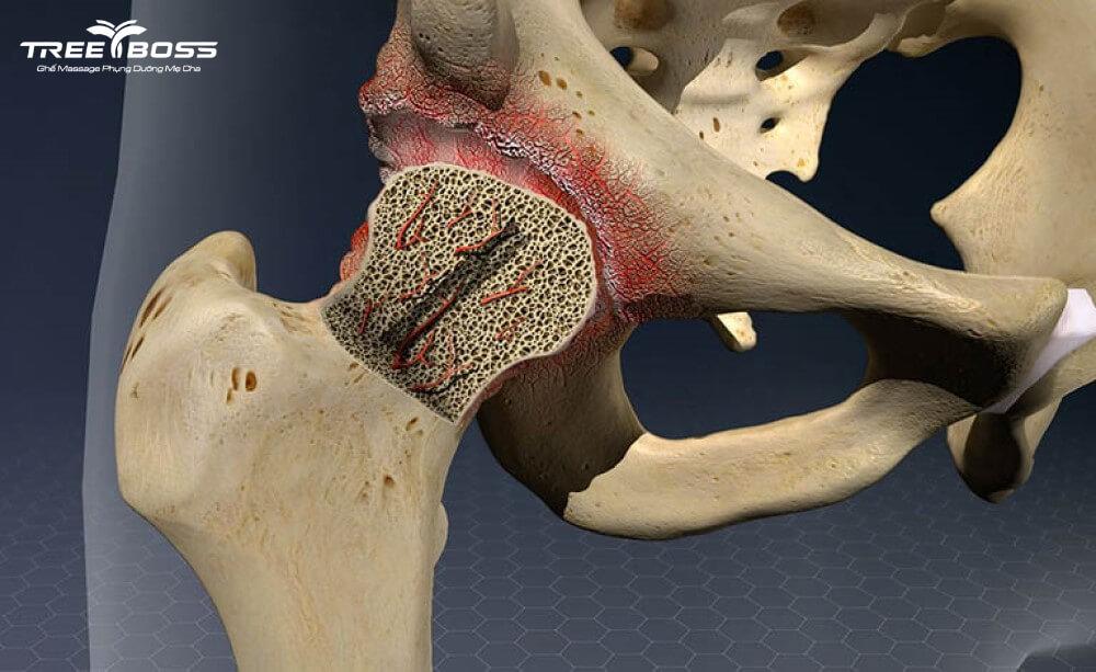 bệnh đau xương khớp ở người già